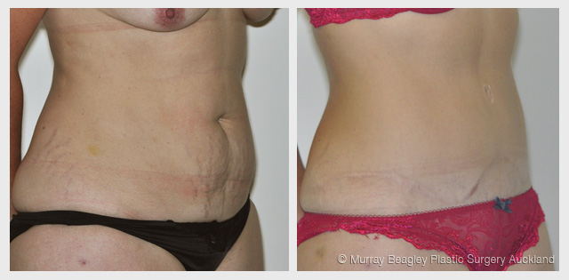 before after Abdominoplasty tummy tuck surgery