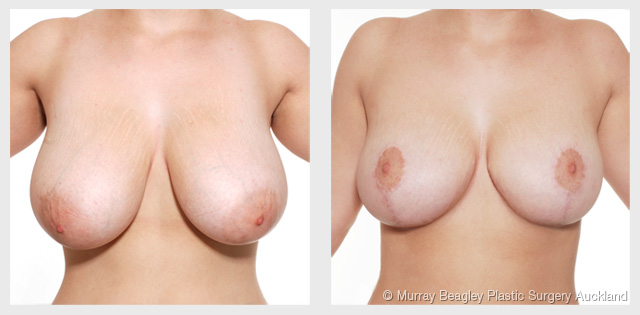 breast reduction Auckland - before after plastic surgery