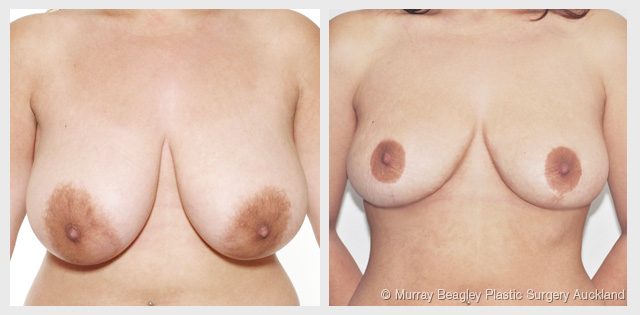 breast reduction before after surgery