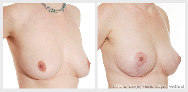 breast lift mastopexy before after photos