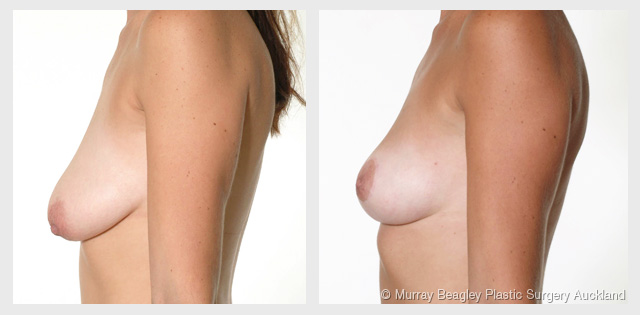 breast lift mastopexy before after