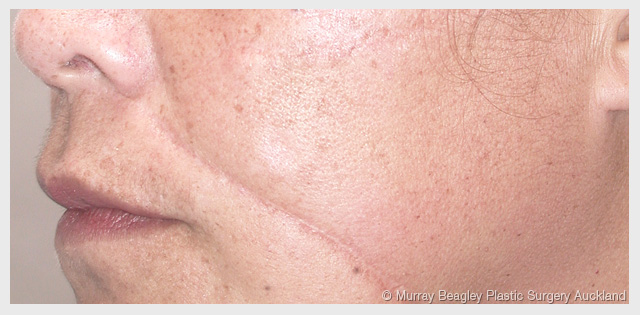 Plastic surgery facial scars opinion you