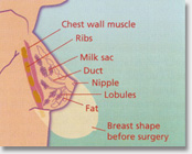 Breast Reduction cosmetic surgery Auckland