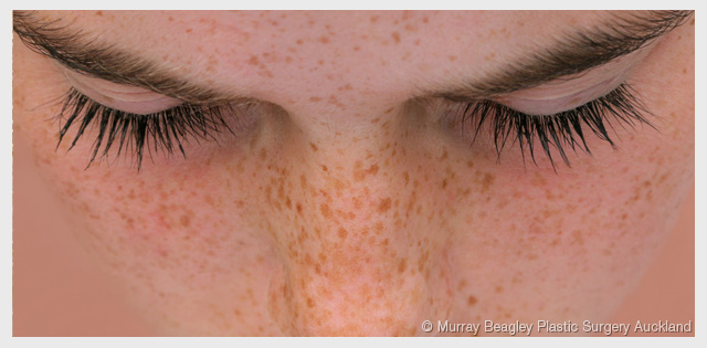 freckles - greater risk for skin cancer